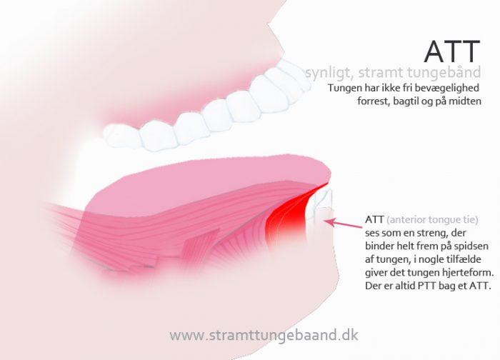 ATT anterior tongue tie stramt tungebånd