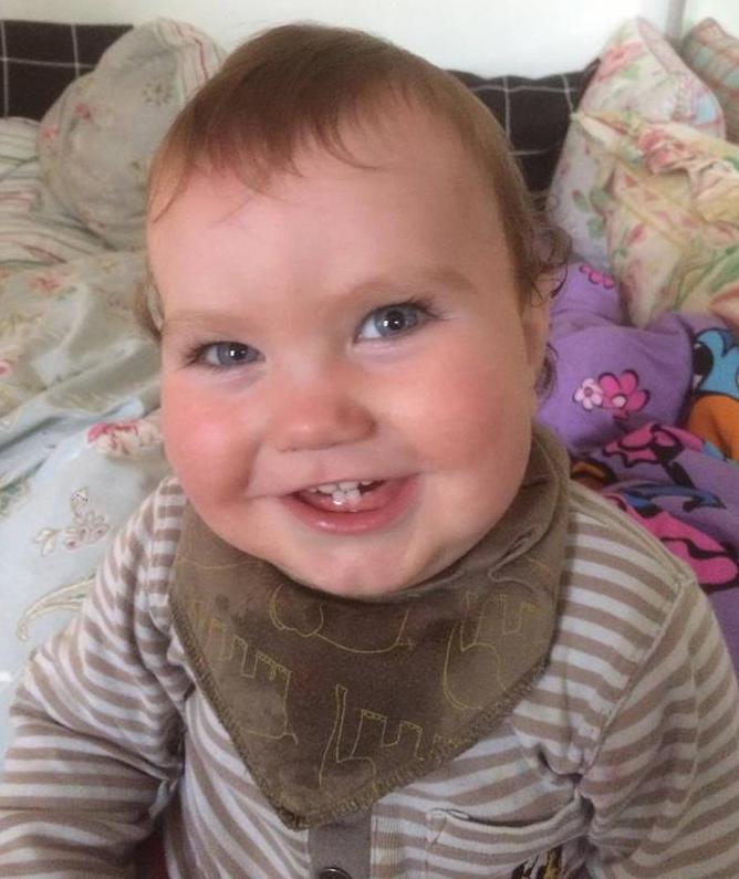 Baby med stramt tungebånd efter behandling, hjalp på refluks og forstoppelse.